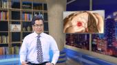 Bác Sĩ Gia Đình Tập 129 : Đột quỵ