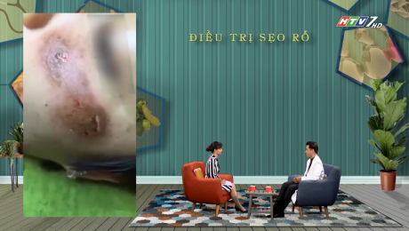 Xem Show VĂN HÓA - GIÁO DỤC Sức Khỏe Cho Mọi Người Tập 08 : Điều trị sẹo rỗ HD Online.