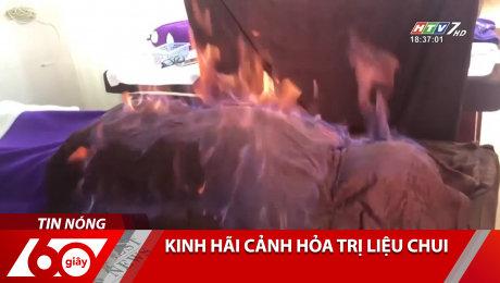 Xem Clip Kinh Hãi Cảnh Hỏa Trị Liệu Chui HD Online.