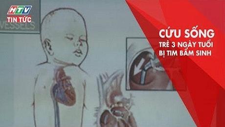Xem Clip Phẫu Thuật Tim Thành Công Cứu Sống Trẻ Sơ Sinh 3 Ngày Tuối HD Online.