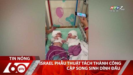 Xem Clip Israel Phẫu Thuật Tách Thành Công Cặp Song Sinh Dính Đầu HD Online.